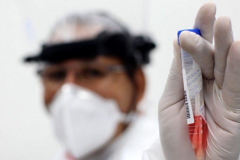Brasil chega a 125.218 casos confirmados de Covid-19 e 8.536 mortes