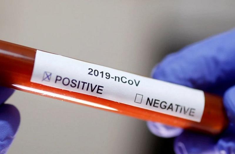Cruz das Almas registra 6 novos casos da covid-19; total sobe para 902